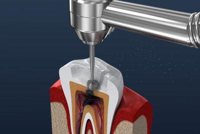 austin dental fillings