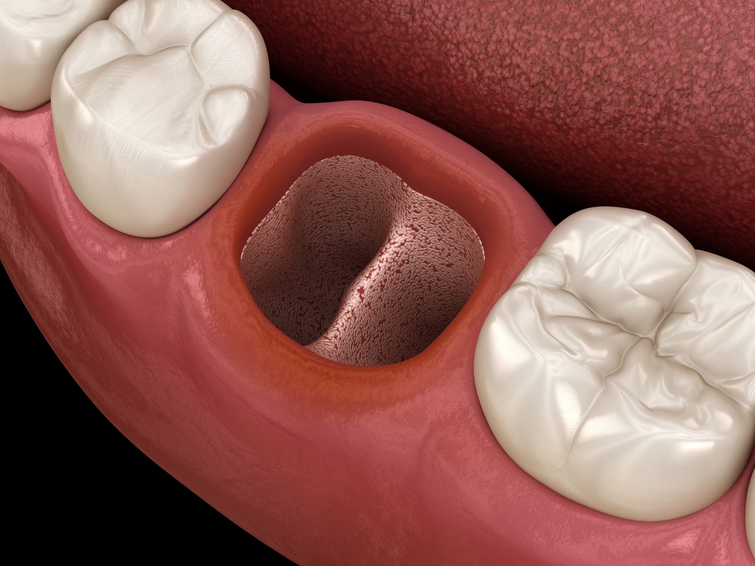 austin tooth extraction