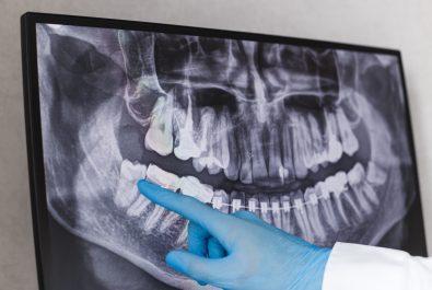 austin dental exam